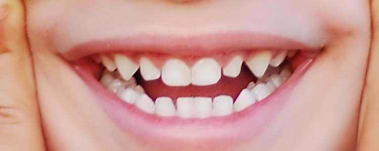 dream dictionary teeth